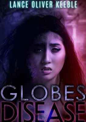 Globes Disease small